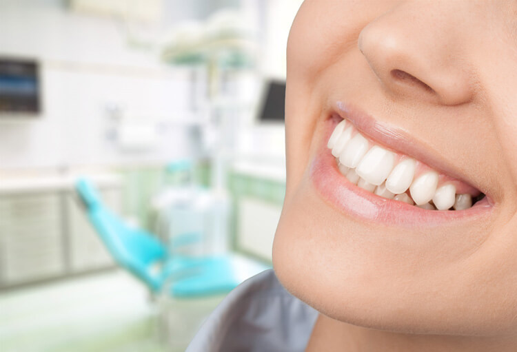 Clareamento dentário