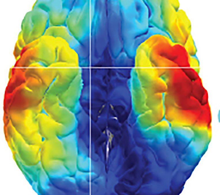 Cérebro multicolorido
